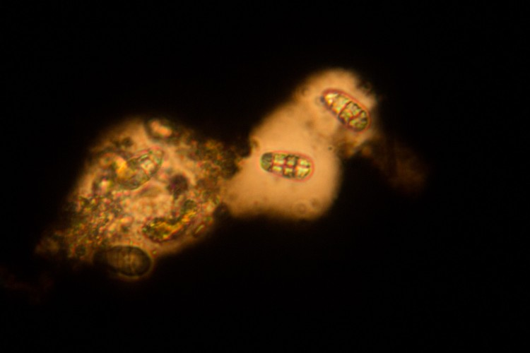 Rhizocarpon halonate spores